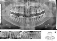 Ortopanoramica con elaborazione Radmedica. Endorali di completamento su siti di interesse.