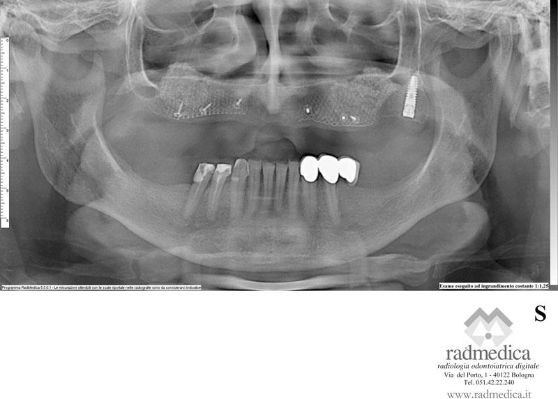 Ortopanoramica con ingrandimento costante 1:1.25