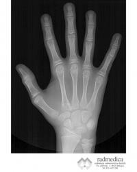 RX mano e polso per indice carpale