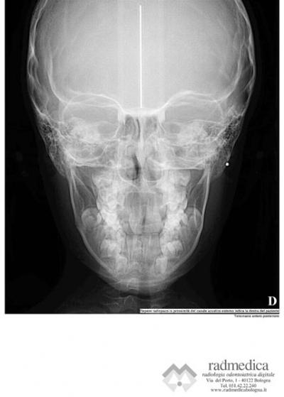 Teleradiografia cranio con cefalostato in proiezione Antero- Posteriore